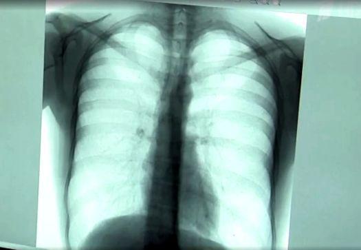 Коронавирус, как говорят специалисты, поражает прежде всего лёгкие человека...